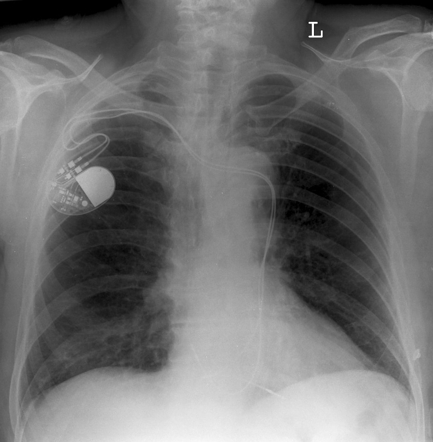 Left%20sided%20superior%20vena%20cava%20xray%201%20cxr%20with%20PPM.jpg